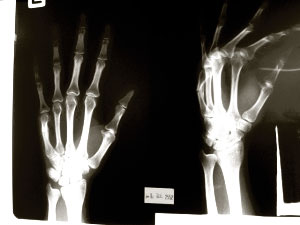 broken-hand-xray